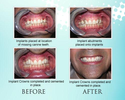 Implants_