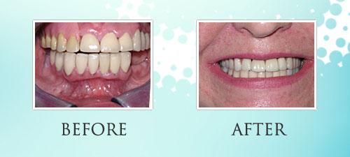 dentures_