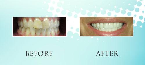 toothbleaching_