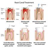 Endodontic FAQs