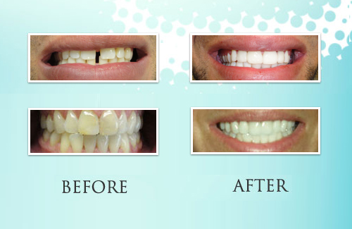 Park Ridge Teeth Whitening