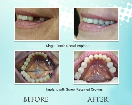 Dental Implant in Park Ridge